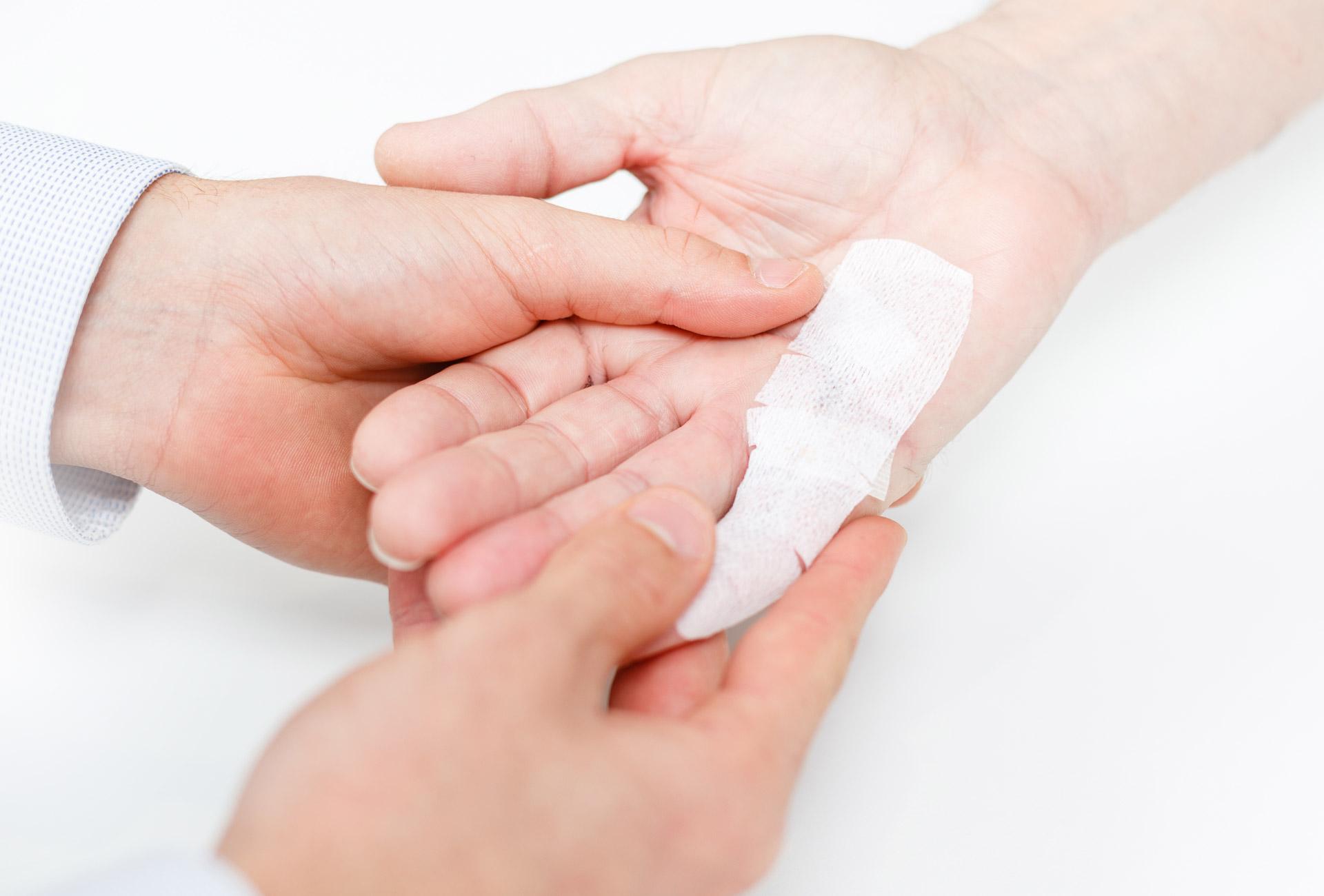 HTC Finger scar treatment